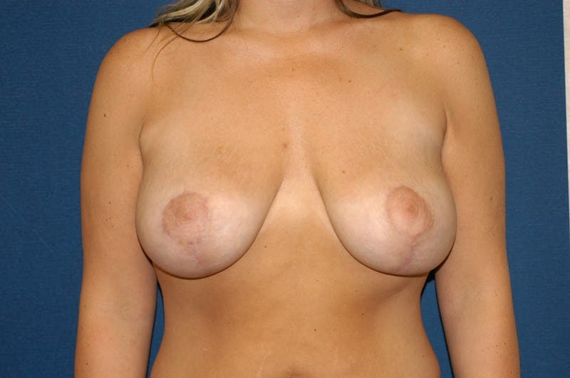 Breast Augmentation Lift Gallery - Patient 6389855 - Image 2