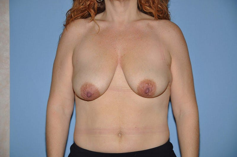 Breast Augmentation Lift Gallery - Patient 6389856 - Image 1