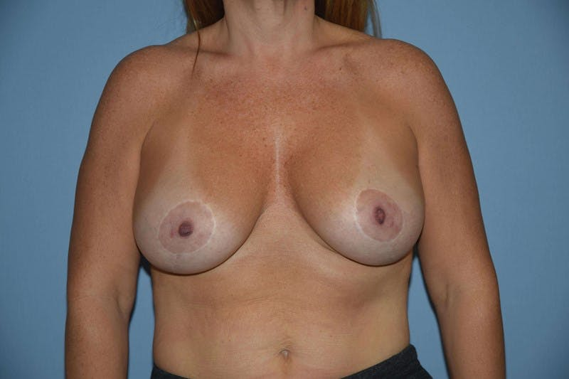 Breast Augmentation Lift Gallery - Patient 6389856 - Image 2