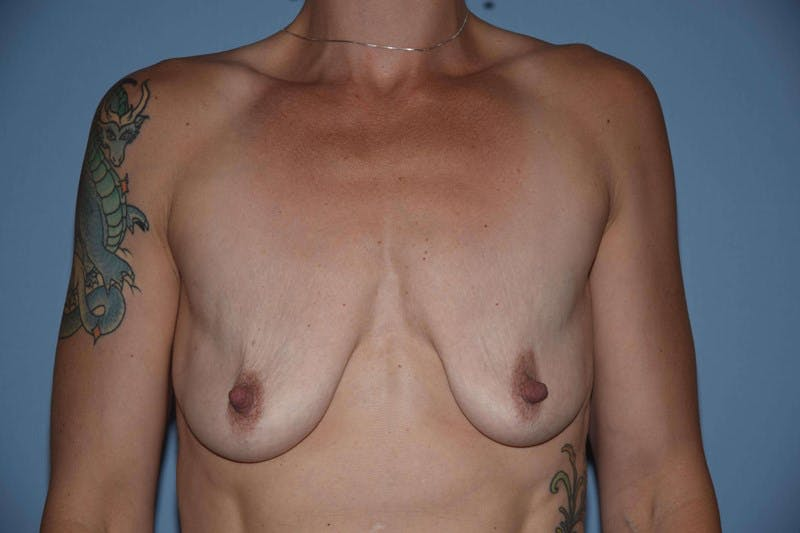 Breast Augmentation Lift Gallery - Patient 6389857 - Image 1