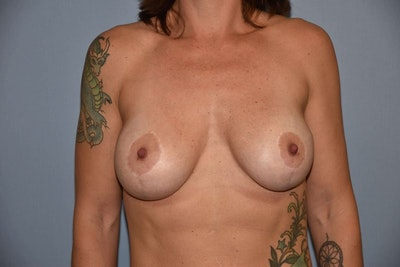 Breast Augmentation Lift Gallery - Patient 6389857 - Image 2