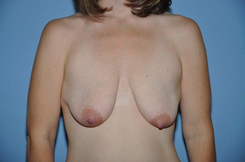 Breast Augmentation Lift Gallery - Patient 6389858 - Image 1