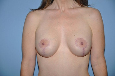 Breast Augmentation Lift Gallery - Patient 6389858 - Image 2