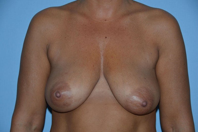 Breast Augmentation Lift Gallery - Patient 6389859 - Image 1