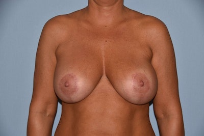 Breast Augmentation Lift Gallery - Patient 6389859 - Image 2