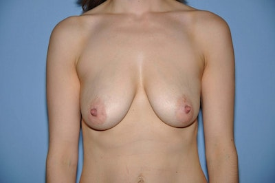Breast Augmentation Lift Gallery - Patient 6389860 - Image 1