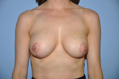 Breast Augmentation Lift Gallery - Patient 6389860 - Image 2