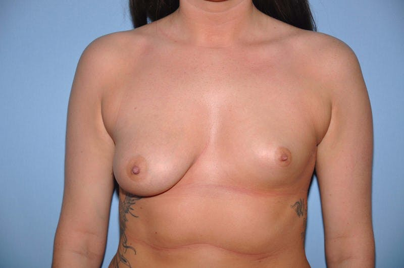 Breast Augmentation Lift Gallery - Patient 6389861 - Image 1