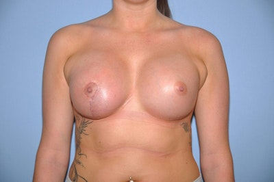 Breast Augmentation Lift Gallery - Patient 6389861 - Image 2