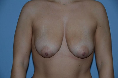 Breast Augmentation Lift Gallery - Patient 6389863 - Image 1