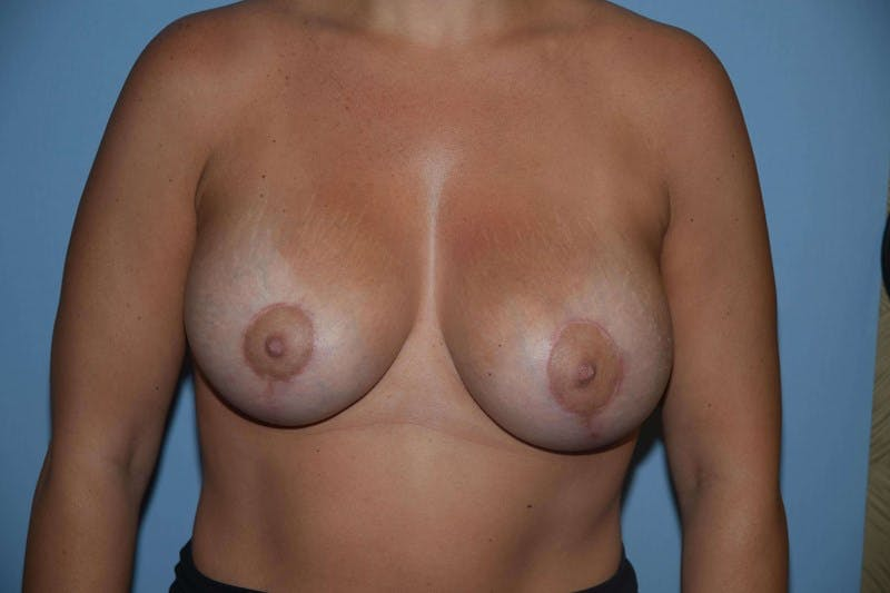 Breast Augmentation Lift Gallery - Patient 6389863 - Image 2
