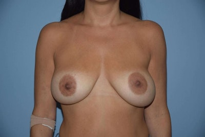 Breast Augmentation Lift Gallery - Patient 6389864 - Image 1