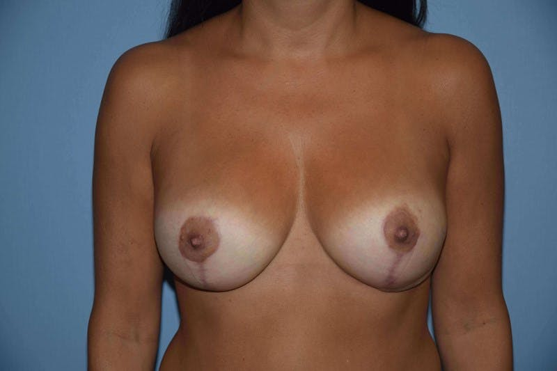 Breast Augmentation Lift Gallery - Patient 6389864 - Image 2