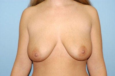 Breast Augmentation Lift Gallery - Patient 6389865 - Image 1