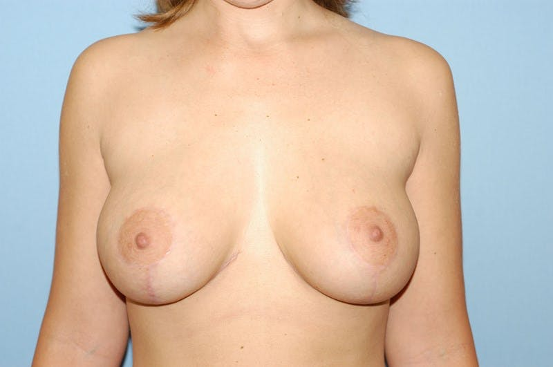 Breast Augmentation Lift Gallery - Patient 6389865 - Image 2