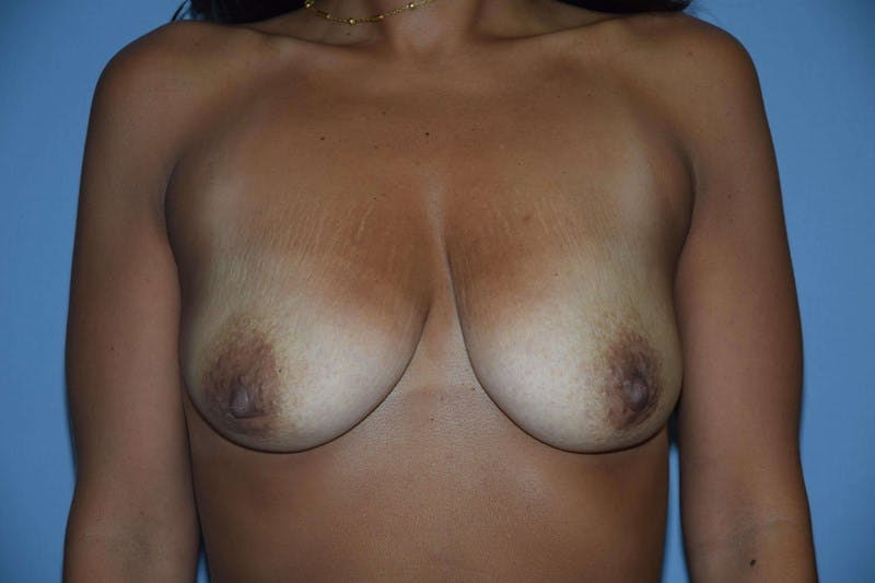 Breast Augmentation Lift Gallery - Patient 6389867 - Image 1