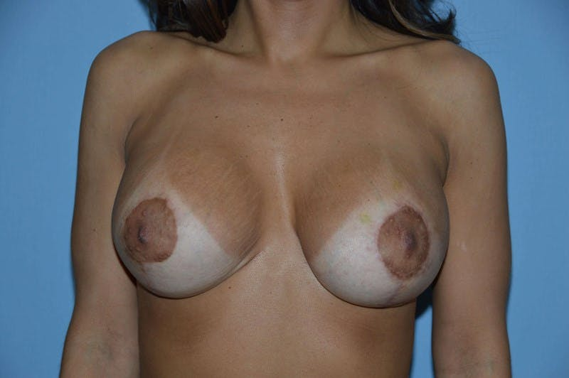 Breast Augmentation Lift Gallery - Patient 6389867 - Image 2