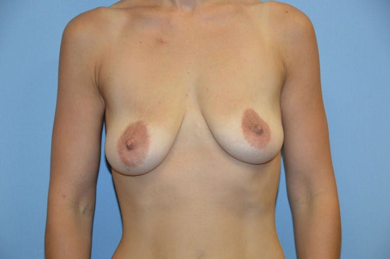 Breast Augmentation Lift Gallery - Patient 6389868 - Image 1