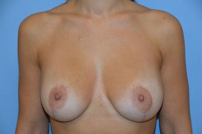 Breast Augmentation Lift Gallery - Patient 6389868 - Image 2