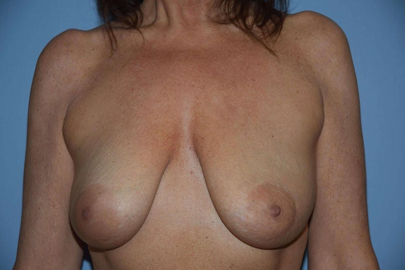 Breast Augmentation Lift Gallery - Patient 6389869 - Image 1
