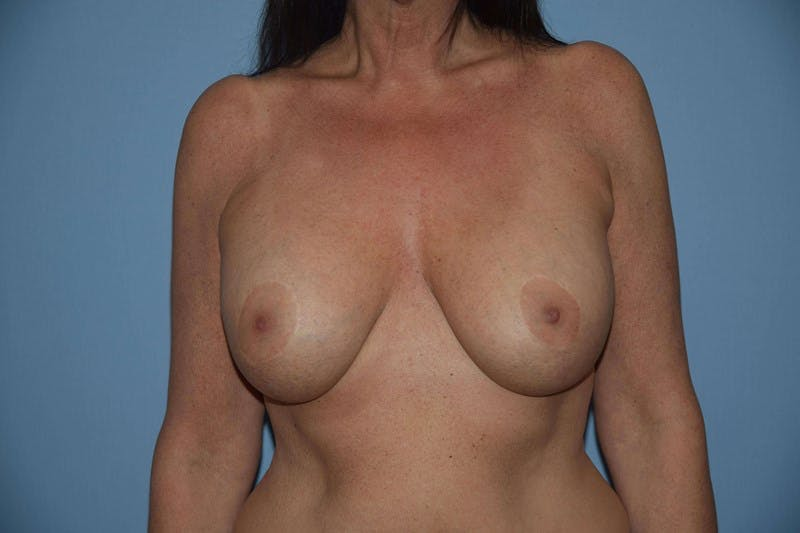 Breast Augmentation Lift Gallery - Patient 6389869 - Image 2