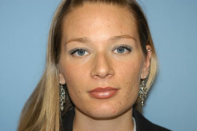 Rhinoplasty Gallery - Patient 6389943 - Image 1