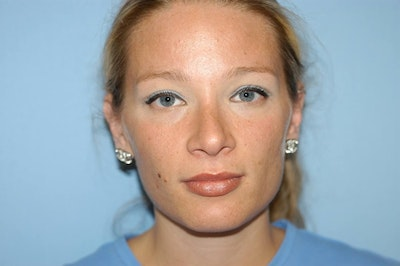 Rhinoplasty Gallery - Patient 6389943 - Image 2