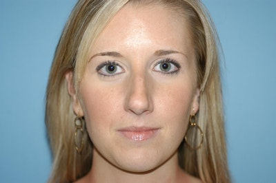 Rhinoplasty Gallery - Patient 6389945 - Image 1