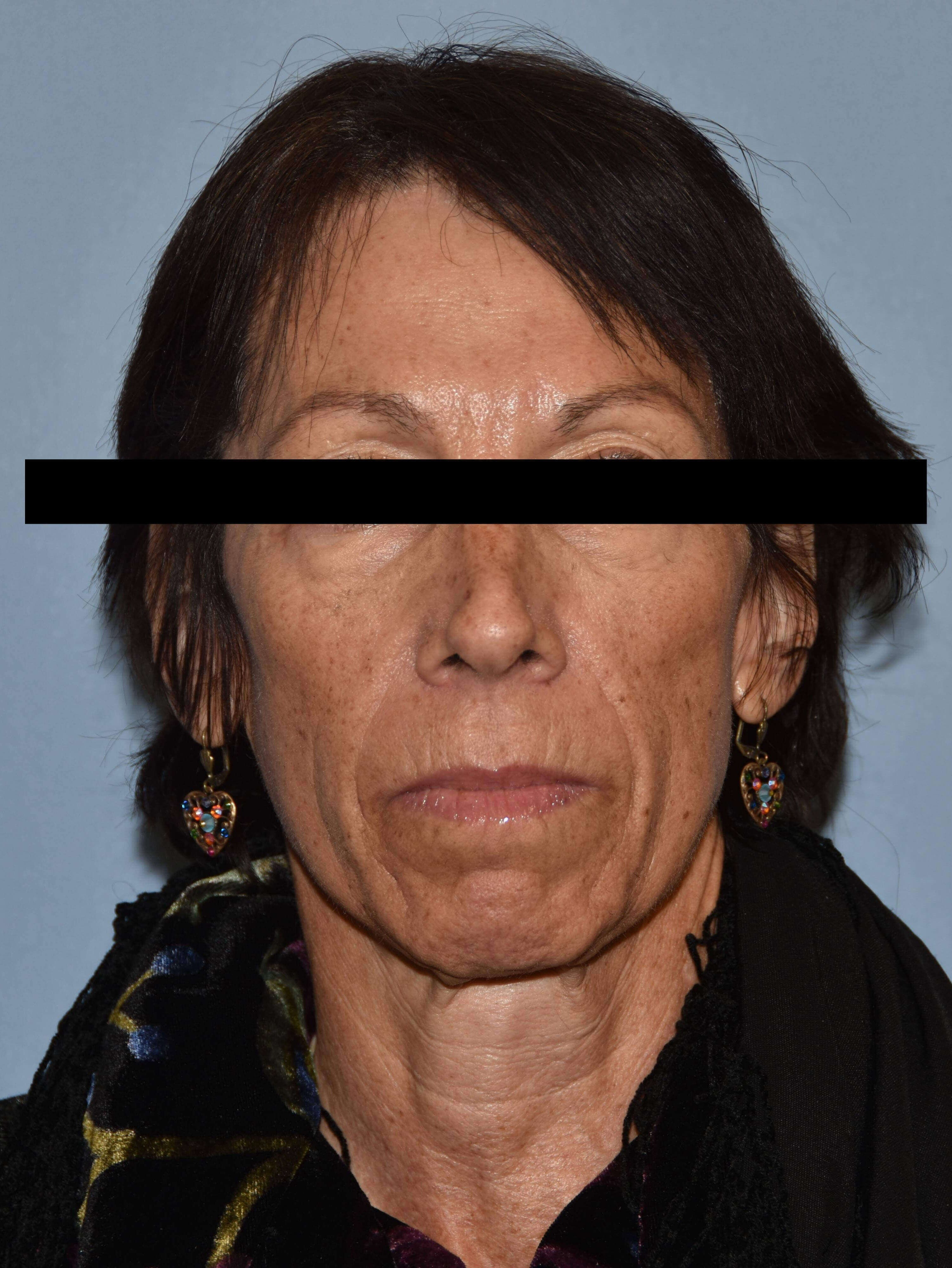 Facelift Gallery - Patient 14281774 - Image 1