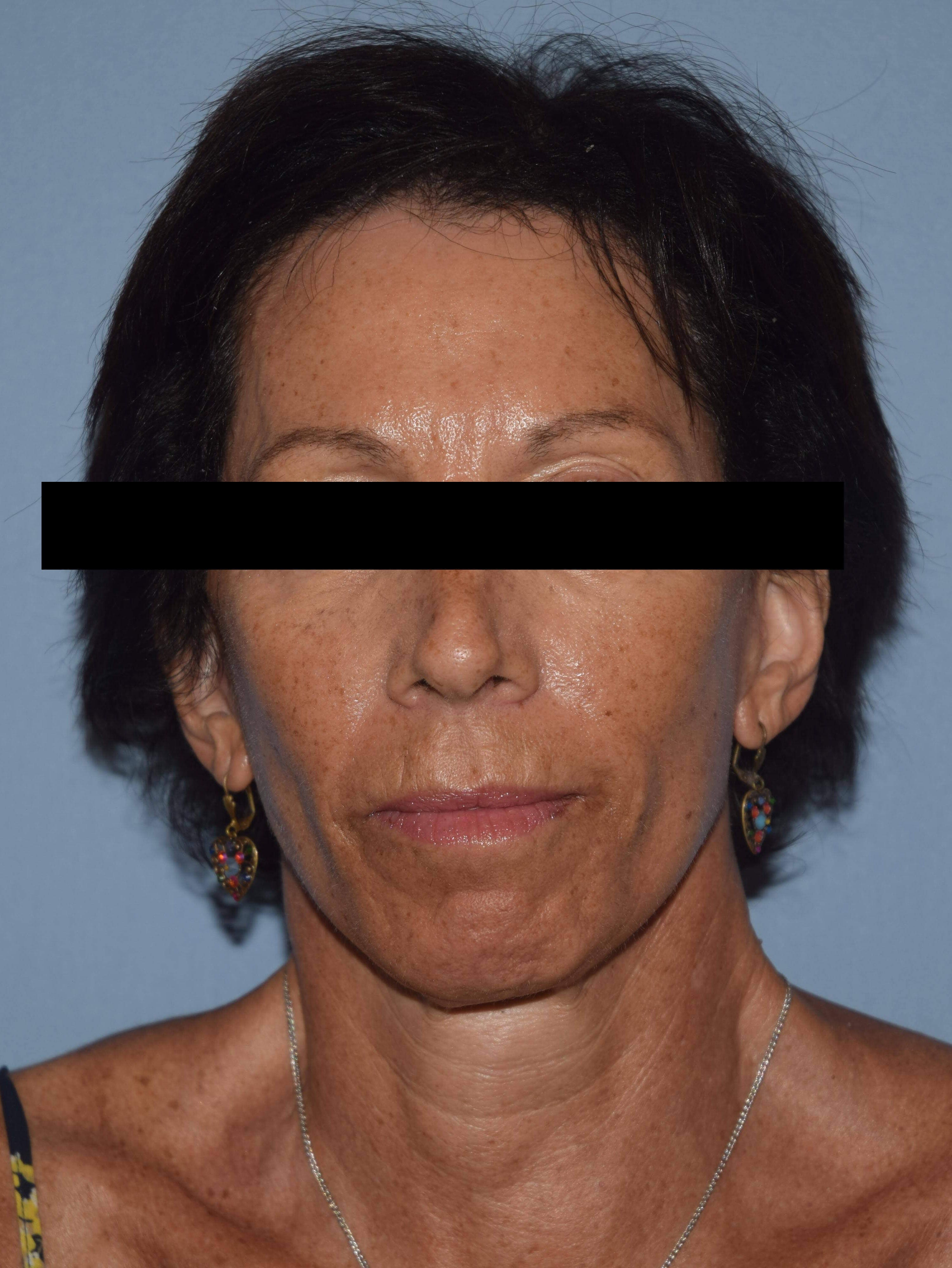 Facelift Gallery - Patient 14281774 - Image 2