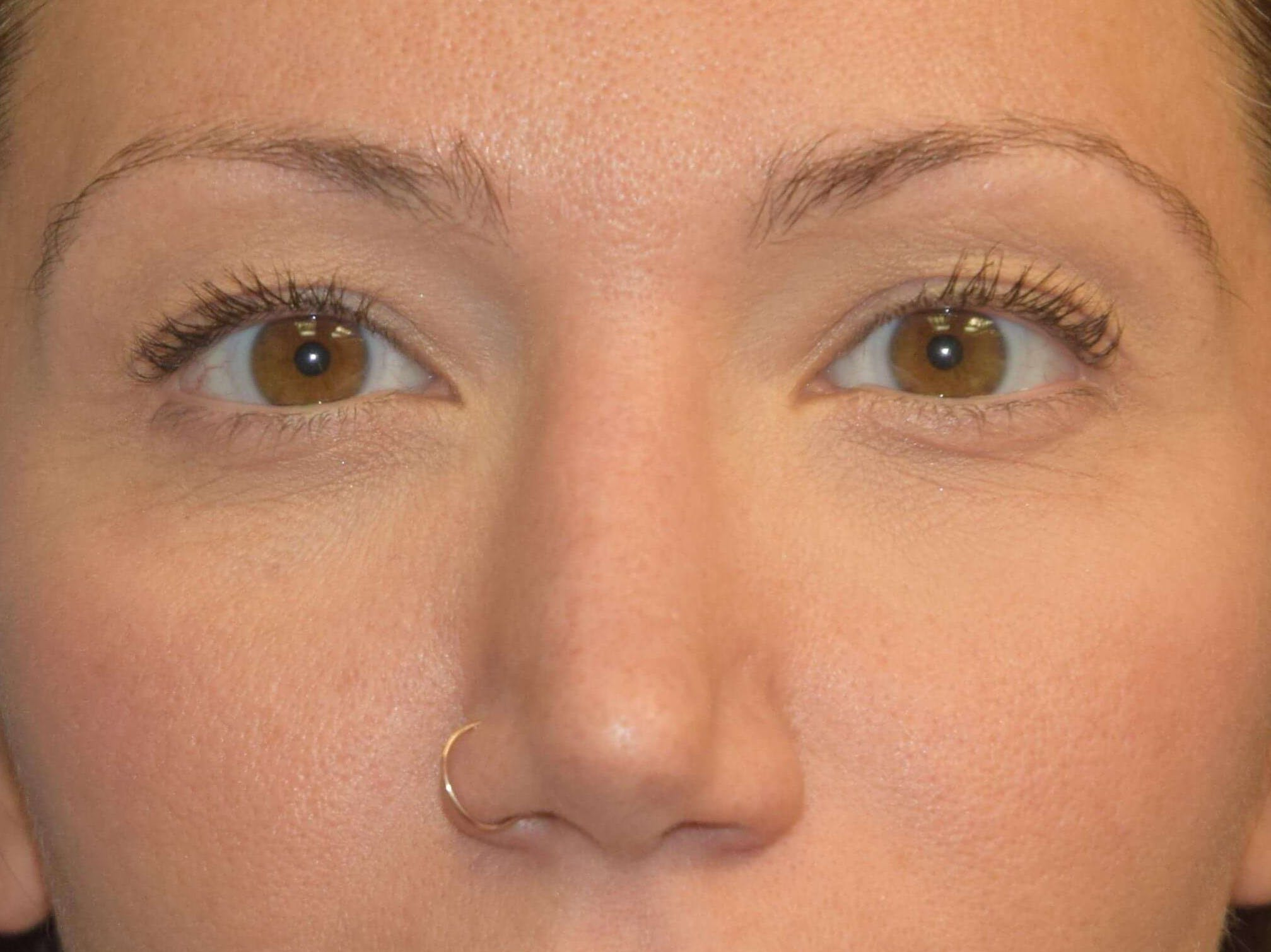 Eyelid Lift Gallery - Patient 9567805 - Image 1