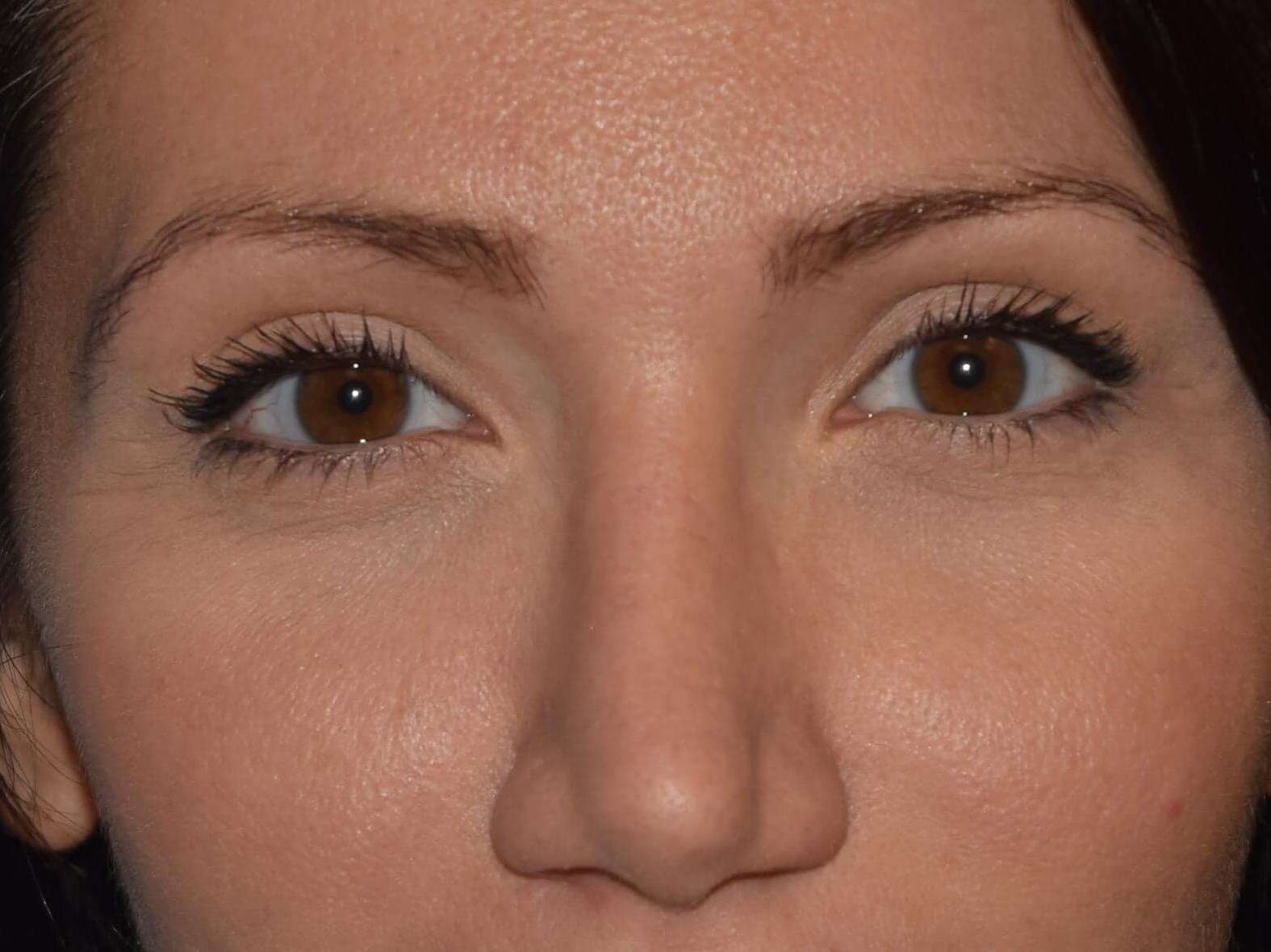 Eyelid Lift Gallery - Patient 9567805 - Image 2