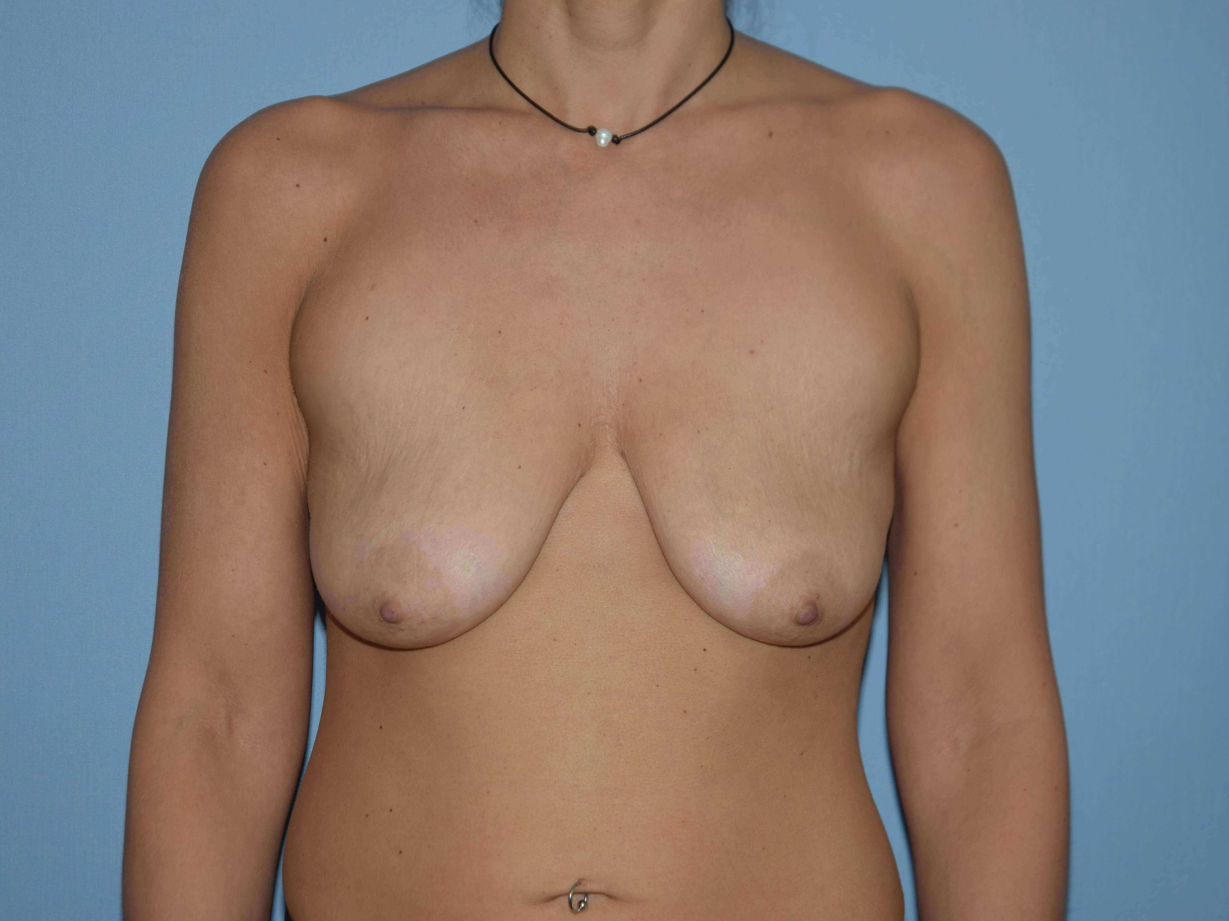 Breast Augmentation Lift Gallery - Patient 14281682 - Image 1