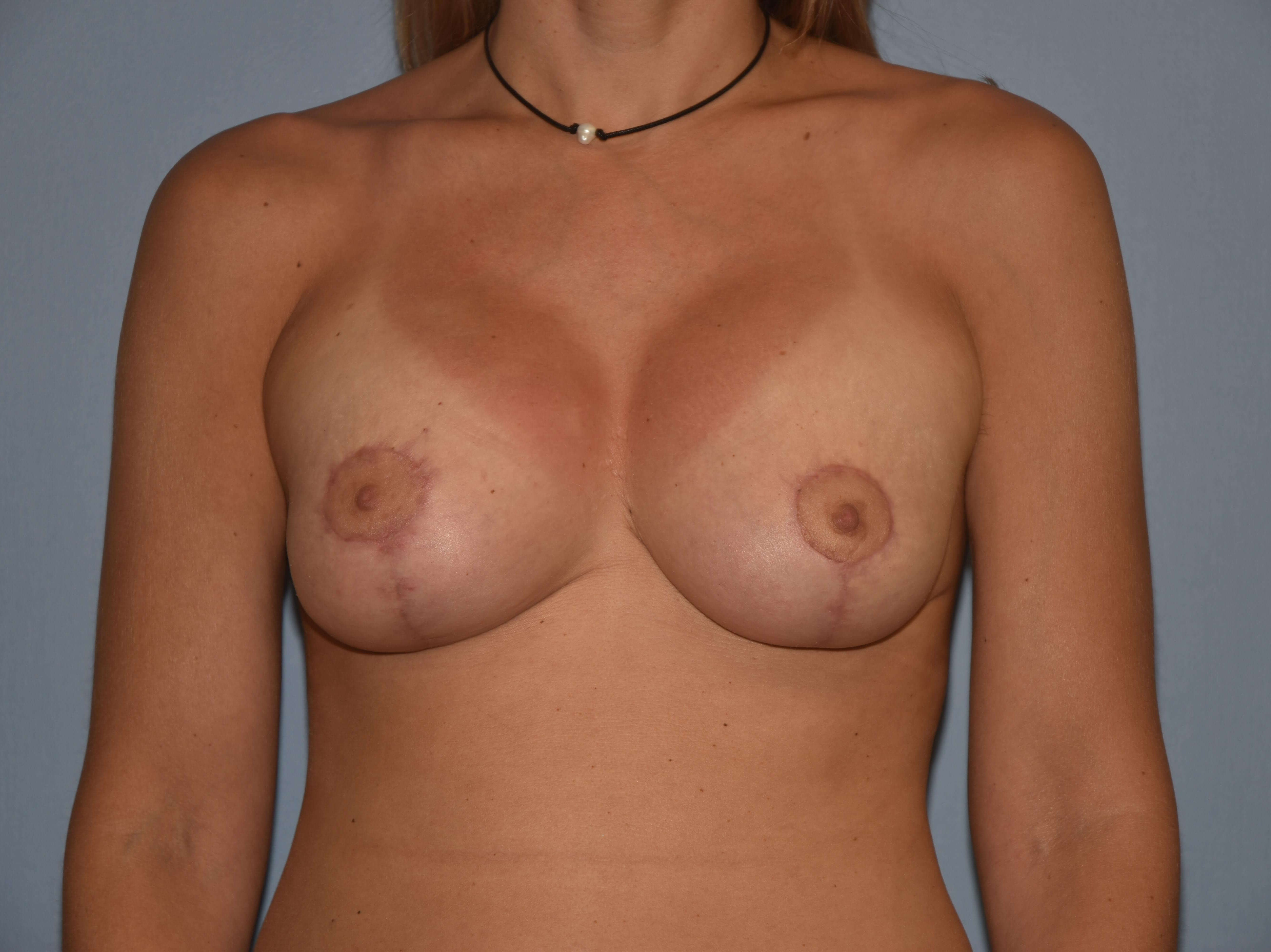 Breast Augmentation Lift Gallery - Patient 14281682 - Image 2