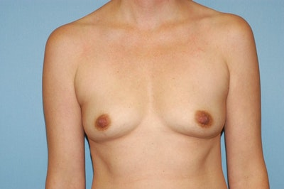 Breast Augmentation  Gallery - Patient 9567905 - Image 1
