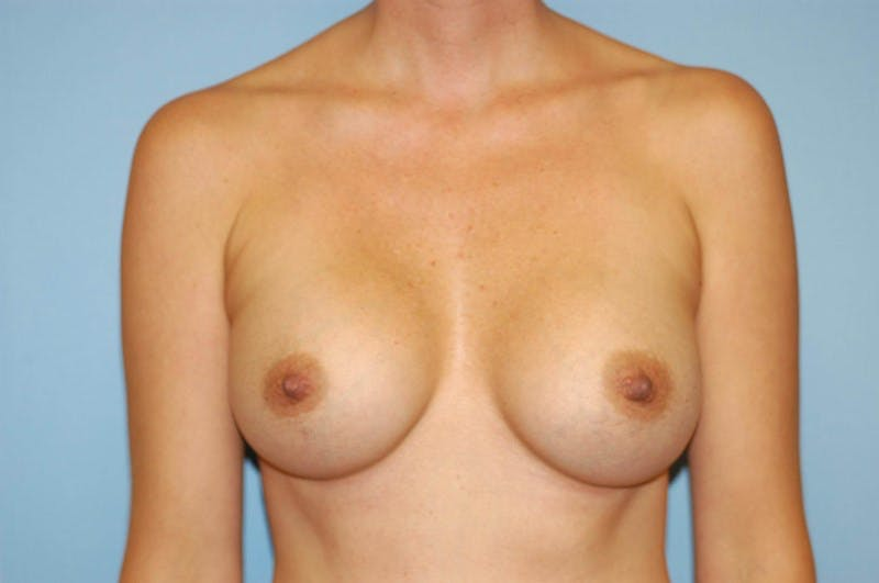 Breast Augmentation  Gallery - Patient 9567905 - Image 2