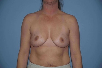 Breast Augmentation  Gallery - Patient 9567907 - Image 1