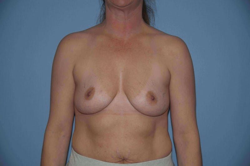 Breast Augmentation Gallery - Patient 14281514 - Image 1