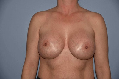 Breast Augmentation  Gallery - Patient 9567907 - Image 2