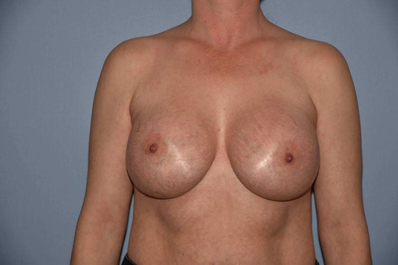 Breast Augmentation Gallery - Patient 14281514 - Image 2