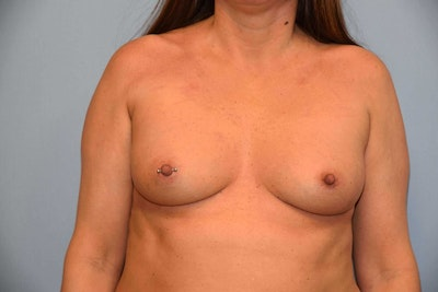 Breast Augmentation  Gallery - Patient 9567912 - Image 1