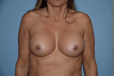 Breast Augmentation  Gallery - Patient 9567912 - Image 2
