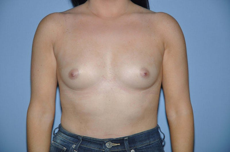 Breast Augmentation  Gallery - Patient 9567914 - Image 1