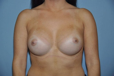 Breast Augmentation  Gallery - Patient 9567914 - Image 2