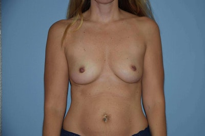Breast Augmentation  Gallery - Patient 9567917 - Image 1