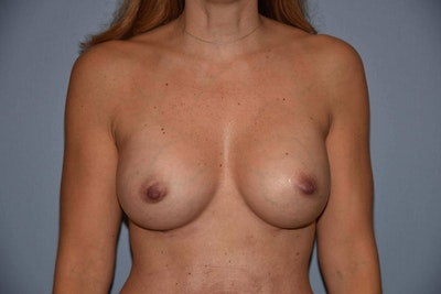 Breast Augmentation  Gallery - Patient 9567917 - Image 2