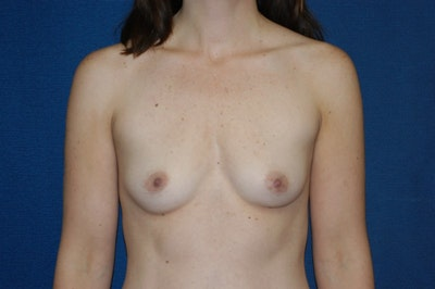 Breast Augmentation  Gallery - Patient 9567929 - Image 1