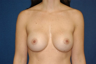 Breast Augmentation  Gallery - Patient 9567929 - Image 2