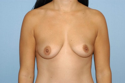 Breast Augmentation  Gallery - Patient 9567930 - Image 1