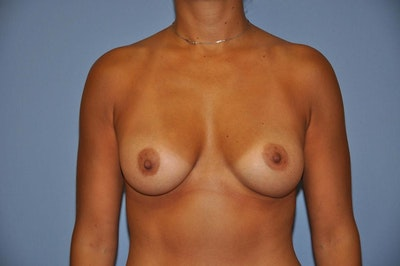 Breast Augmentation  Gallery - Patient 9567930 - Image 2